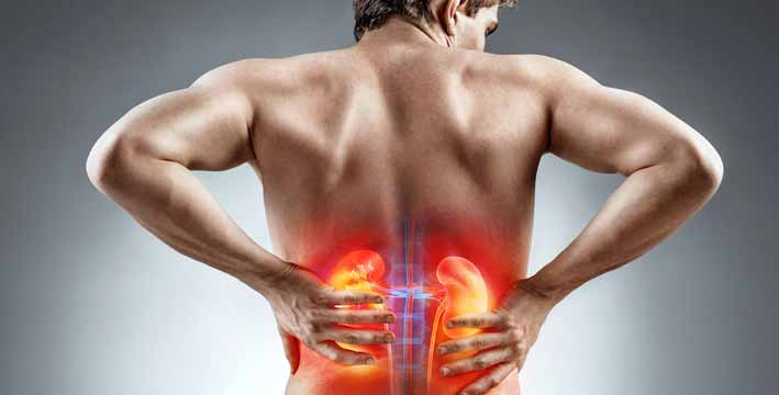 What to do For Kidney Stone Pain Relief