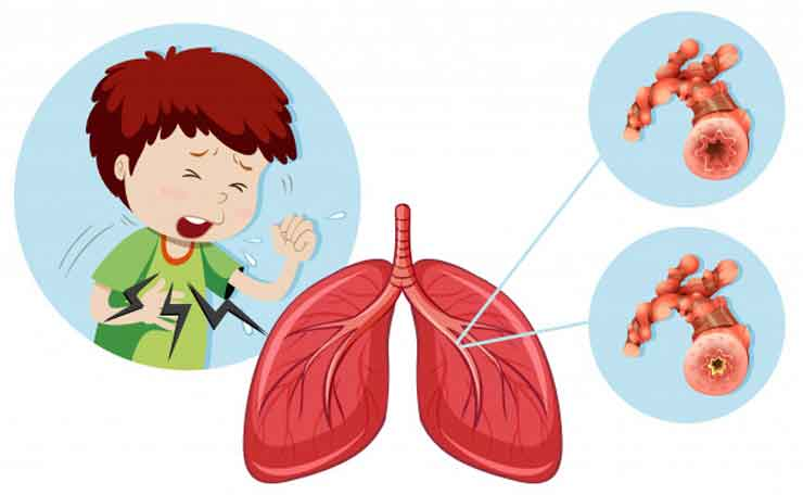 Everything You Need to Know About Bronchitis