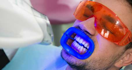 laser teeth whitening is bad for your teeths health